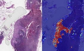 谷歌利用人工智能工具进行癌症筛查 准确率高达99%